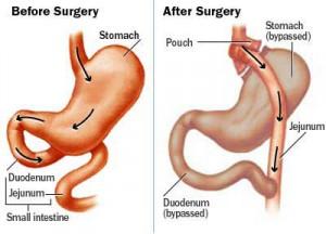 Gastricbypass
